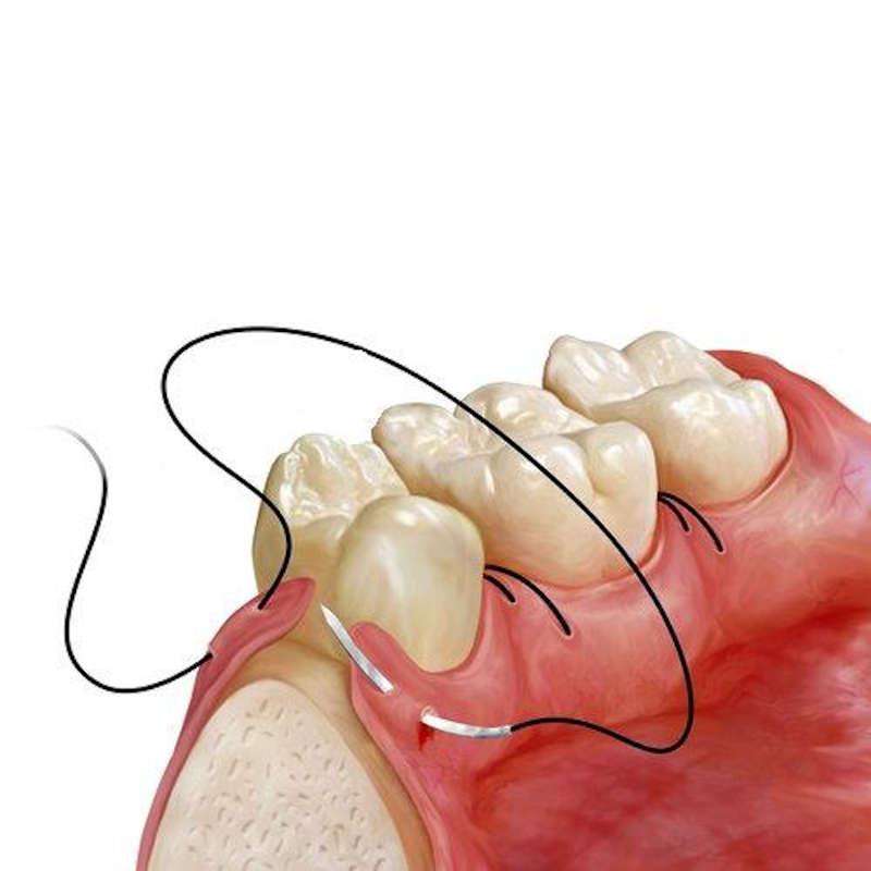 Stonek - dentoalveolárna chirurgia - Košický zubár