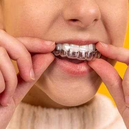 Stonek - estetická stomatológia - Košický zubár