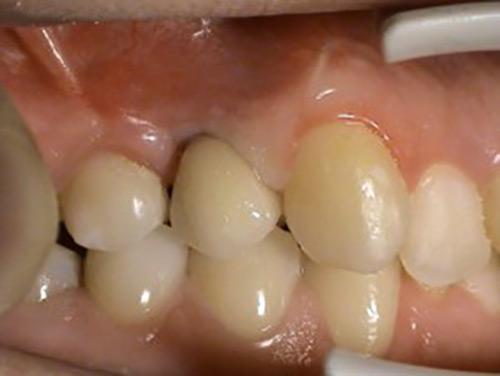 Nahrady chybajucich zubov - Implantologia Stonek