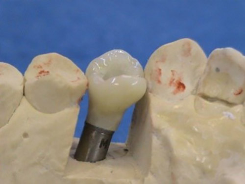 Nahrady chybajucich zubov - Stonek Kriva 23