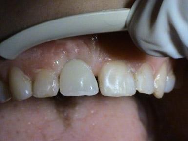 Operacne postupy - implantacie - MUDr. Kucera Jan - Stonek Kosice Kriva 23
