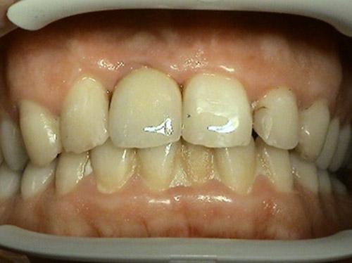 Proteticke riesenie implantologie - Stonek