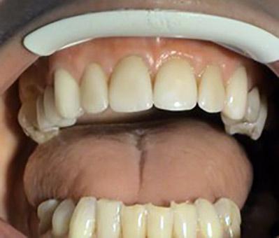 Korekcie recesov – Stonek – zubar Kosice – MUDr. Kucera Jan