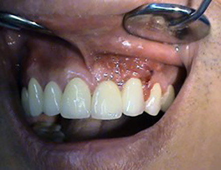 Korekcie recesov – parodontologia Stonek Kosice Kriva 23