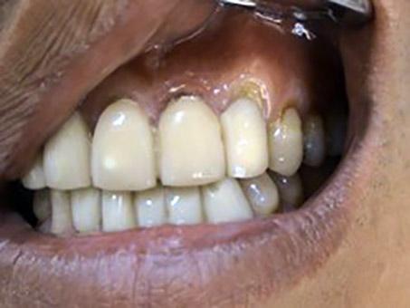 Korekcie recesov – parodontologia Stonek Kosice