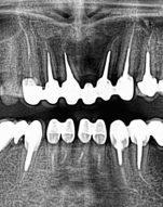 Korenove kanaliky, zubne kazy - Stonek Kosice zubar