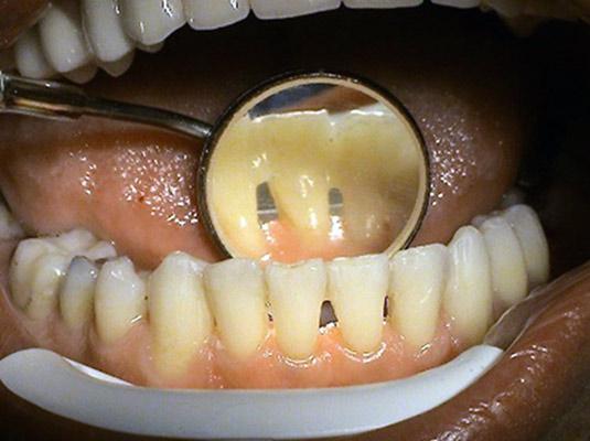 Protetika - adhezivne mostiky - zubny lekar Kosice - MUDr. Kucera Jan